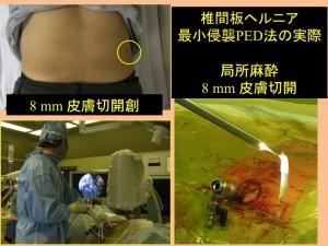 椎間板ヘルニア 最小侵襲PEDの実際  局所麻酔、8mmの皮膚切開