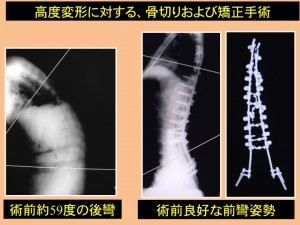 高度変形に対する、骨切りおよび矯正手術