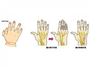 母趾多肢症(左) 腱の移行手術・移植手術(右)