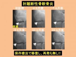 肘離断性骨軟骨炎 保存療法で修復し、再発なし!