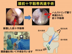 膝前十字靱帯再建術