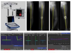 ナビゲーションシステムを用いて最先端の人工膝関節置換術を行っています。このシステムを用いることにより正確な人工関節の設置と下肢アライメントの再建が可能となります。